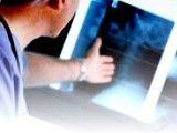 Sprawdź czy ci grozi osteoporoza!
